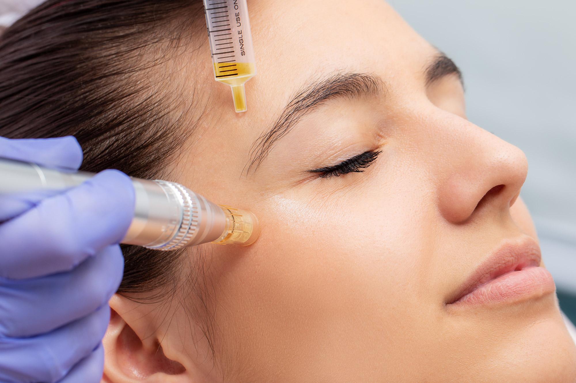 Using Botox to Treat Crow's Feet