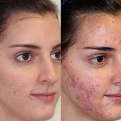 acne-a-after