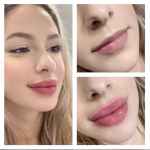 lip filler brownsville | dr. Minina