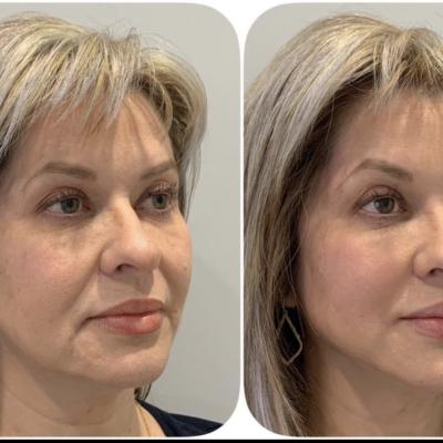 Wrinkle reducer | dr minina